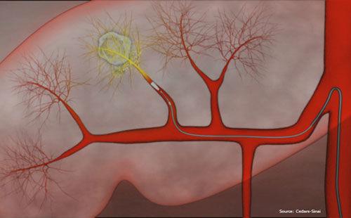Kỹ thuật mới kéo dài sự sống cho bệnh nhân ung thư gan - Sức khỏe