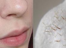 Những nốt li ti trên mũi: Tưởng mụn đầu đen mà không phải!