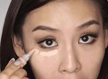 5 vùng da đa phần bị