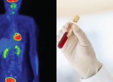 Xác định sớm mầm ung thư: 6 xét nghiệm bạn có thể làm ngay