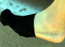 Thủ phạm của vết bầm tím trên cơ thể không rõ nguyên nhân