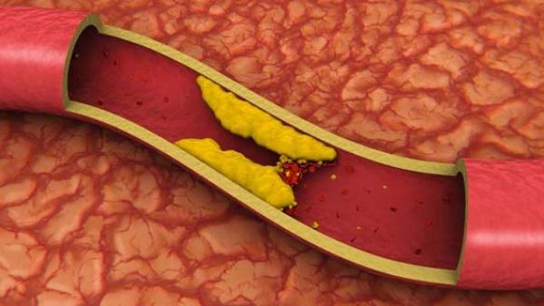 Cholesterol và nguy cơ bệnh tim