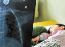 Bé gái 3 tuổi bị vỡ thực quản chỉ vì hành động sai lầm của bà nội