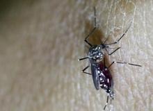 Tránh hôn, kiêng quan hệ để phòng tránh virus Zika
