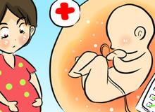 Hướng dẫn chăm sóc phụ nữ mang thai trong thời điểm vi rút Zika xuất hiện ở Việt Nam