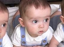 Cuộc sống của các bé trong ca sinh 3 hiếm có trên thế giới