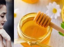 3 cách trị tàn nhang bằng mật ong hiệu quả nhanh